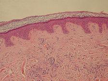 Эпидермис и дерма кожи человека под микроскопом ((фото Kilbad/Wikipedia Commons).)