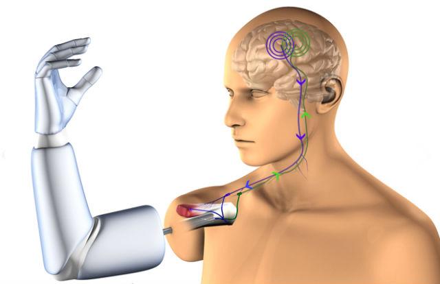 Электрод вживляется в мышцу, которая получает сигналы напрямую от мозга (фото Ortiz Catalan).