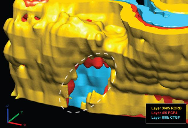 3D-реконструкция очагового нарушения в головном мозге ребёнка-аутиста (иллюстрация Stoner et al./NEJM).